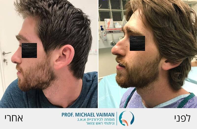 ניתוח אף פלסטי לפני ואחרי